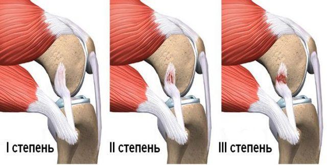 Потянул мышцу на ноге — что делать и чем лечить растяжение связок, первая помощь при разрыве связок