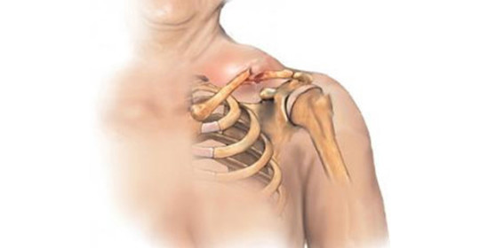 Вывих ключицы: симптомы и лечение, как вправить кость, реабилитация после травмы