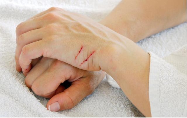 Как обработать рану зеленкой: можно ли мазать открытую рану зеленым бриллиантовым раствором