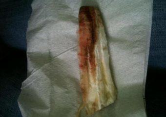 Имплантационное кровотечение (фото) и как отличить от месячных, как выглядит на прокладке и на какой день после зачатия бывает