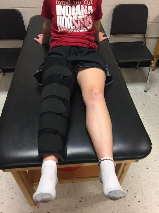 Вывих надколенника или коленной чашечки: лечение и реабилитация, последствия