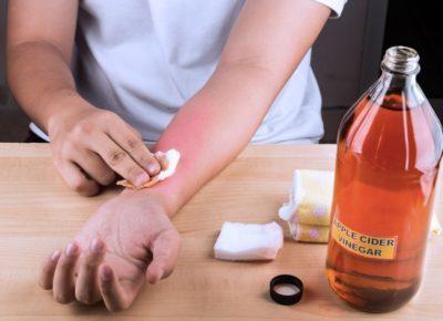 Ожог уксусом — что делать и чем лечить, лечение ожога кожи лица или тела, глаз и языка мазями в домашних условиях