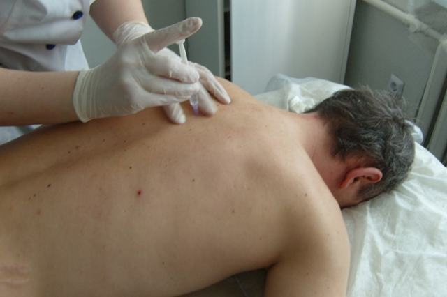 Уколы от боли в спине и пояснице — название обезболивающих и противовоспалительных лекарств, три эффективных инъекций при боли
