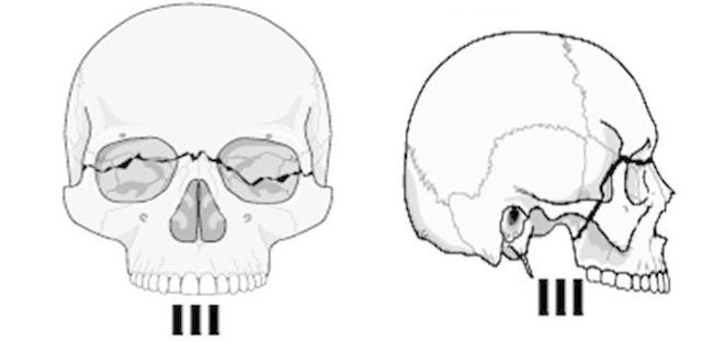Перелом верхней челюсти по Лефору: лечение, симптомы и последствия
