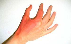 Ожог Димексидом — что делать и как лечить в домашних условиях, последствия ожога кожи на: пальце, ладони и пятке