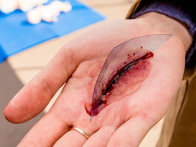 Чем обработать открытую рану, первая помощь и лечение рваной раны в домашних условиях