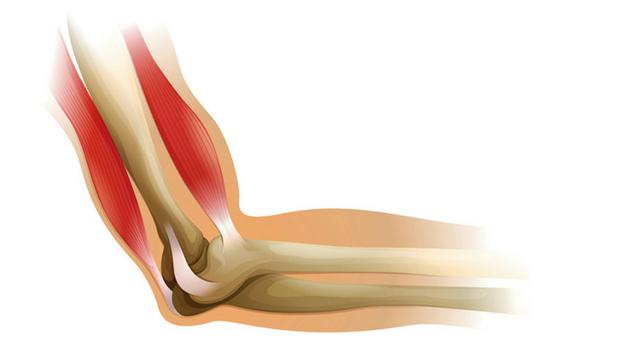 Реабилитация после вывиха локтевого сустава: ЛФК, восстановление после травмы