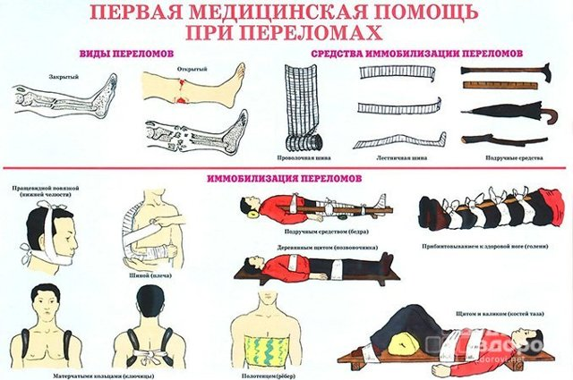 Первая помощь при переломах и вывихах, оказание неотложной медицинской помощи при закрытом и открытом переломе