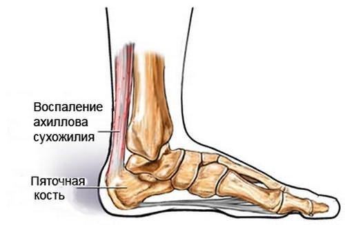 Повреждение ахиллова сухожилия — симптомы пореза, ушиба и ущемления, лечение травмы и энтезопатии, киста (гигрома) ахилла