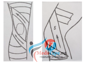 Тейпирование боковой связки колена при растяжении, помогает ли фиксация внутренней и внешней связки коленного сустава тейпом
