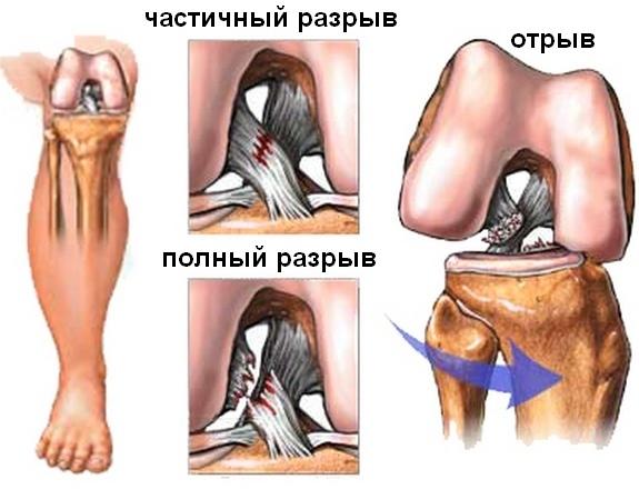 Разрыв крестообразных связок колена — частичное и субтотальное (неполное) повреждение крестов коленного сустава