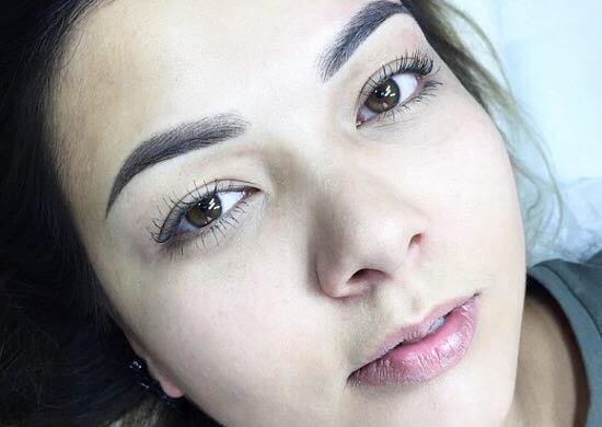 Шрам на брови у девушек и мужчин — как убрать, остаются ли рубцы после микроблейдинга бровей и пирсинга