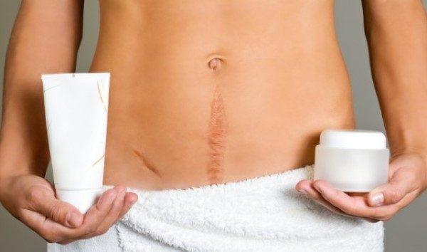 Шрамы после кесарева (фото) и эндометриоз послеоперационного рубца, как выглядит шов и келоидный рубец после кесарева сечения