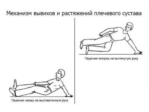 Лечение растяжения связок плечевого сустава и сколько заживает, симптомы растяжения плеча