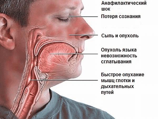 Анафилактический шок — неотложная помощь (алгоритм действий 2018-2019), первая доврачебная помощь и симптомы у детей