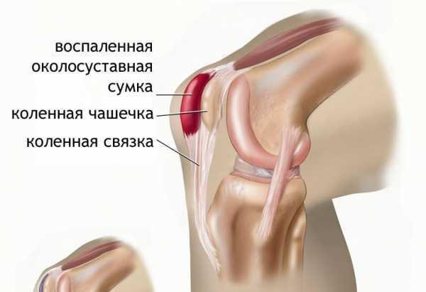 Разрыв мениска коленного сустава — лечение без операции, как лечить надрыв и трещину мениска народными средствами