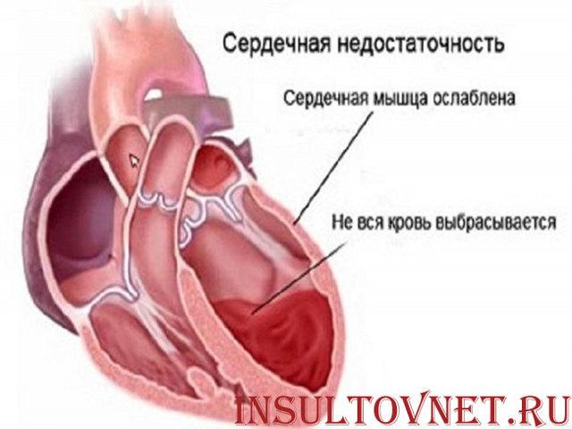 Действия при инсульте
