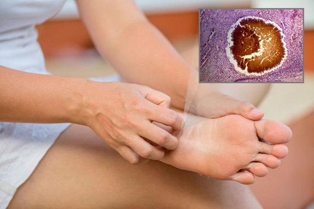 Обморожение кожи: первая помощь, лечение и последствия отморожений, степени