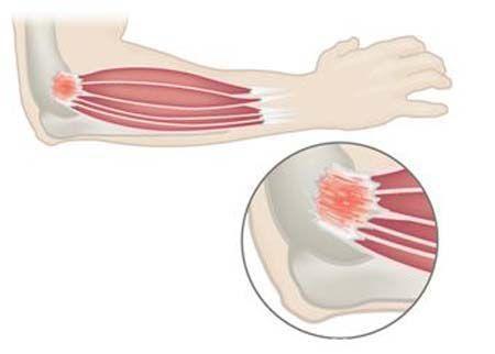 Разрыв связок локтевого сустава — симптомы, лечение и восстановление поврежденных связок локтя