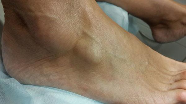 Шишка на голеностопе с внешней стороны — причины и лечение, гигрома сверху и с внутренней стороны голеностопного сустава