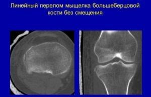 Большая берцовая кость: перелом мыщелка и межмыщелкового возвышения большеберцовой кости, сроки лечения