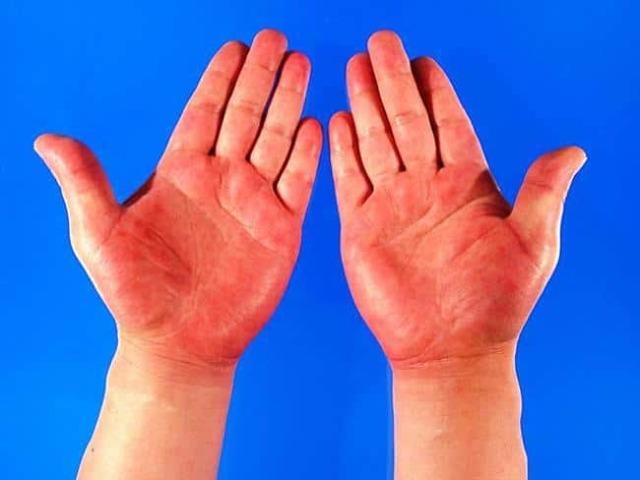 Руки горят от горького перца — что делать и как убрать жжение, пекут руки от острого чили и чем смыть перцовый баллончик