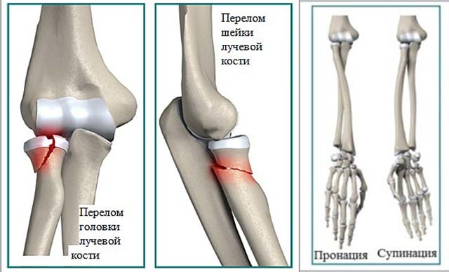 После перелома лучевой кости не спадает отечность: лечение с помощью мазей и народных средств