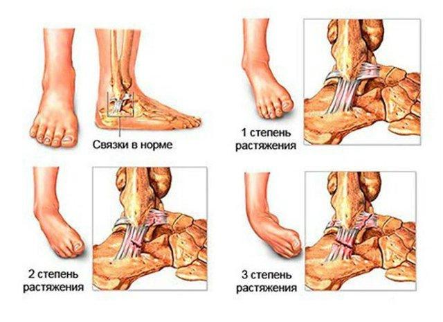 Что делать при вывихе стопы: первая помощь при травме голеностопа, реабилитация ноги
