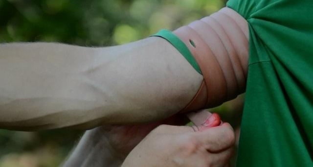 Венозное кровотечение: первая помощь, способы остановки крови из вен и алгоритм наложения жгута