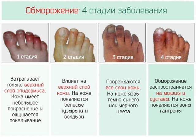 Обморожение пальцев ног: первая помощь и лечение, осложнения и последствия