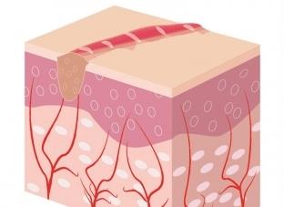 Гипертрофический рубец (фото), лечение и отличия келоидных и гипертрофированных рубцов