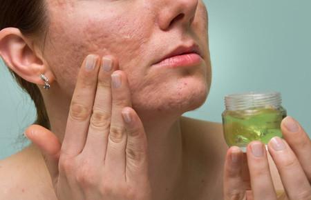 Как избавиться от пятен от прыщей и убрать шрамы, средства для удаления рубцов, мазь Контрактубекс и другие крема