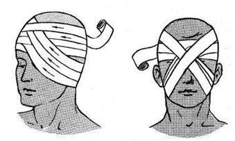 Когда следует накладывать давящие повязки и правила наложения медицинских повязок на раны и голову, виды и способы перевязок