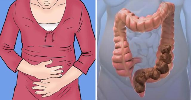Надорвала живот — симптомы у женщин и мужчин сорванного золотника, что делать и как лечить