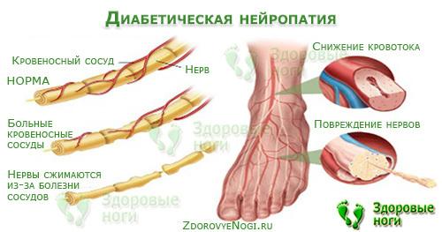 Мазь для заживления ран при сахарном диабете и что делать если долго не заживает рана на ноге, лечение незаживающих травм