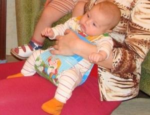 Дисплазия тазобедренного сустава у новорожденных (врожденный вывих у детей): лечение и последствия