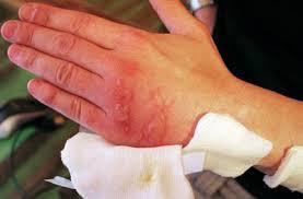 Что делать при сильном ожоге (утюгом или огнем), оказание первой доврачебной и медицинской помощи при термических ожогах