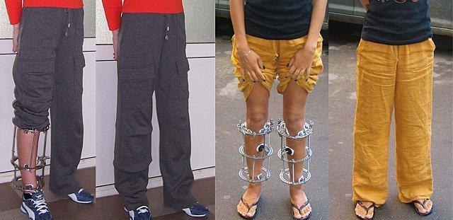Аппарат Илизарова на руке: установка, снятие и восстановление руки, сроки применения