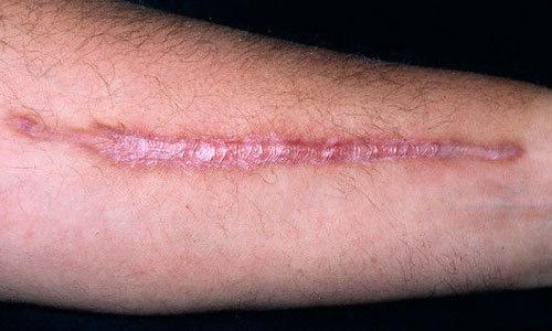 Рубцы на простате — причины и что означают, от чего образуются шрамы и излечимы ли они, последствия и лечение