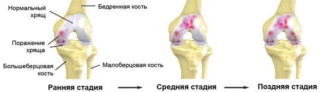 Упражнения для голеностопа в домашних условиях (по бубновскому) и сроки восстановления, ЛФК и массаж для укрепления связок сустава