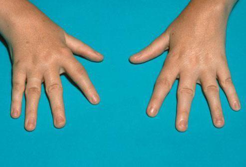 Вывих мизинца на руке: симптомы, что делать и как делить травму, осложнения