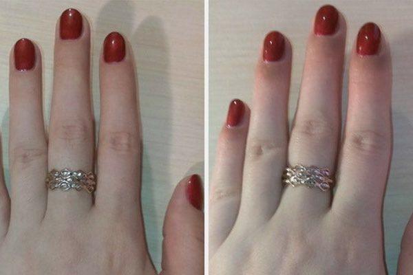 Ожог ногтевой пластины от перегрева в лампе и после шеллака, как лечить ожог от уф и лед лампы для ногтей