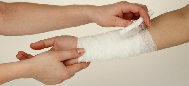 Ожог паром — что делать в домашних условиях, первая помощь если обожгла (ошпарила) руку или пальцы и чем лечить ожог