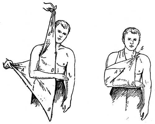 Первая помощь при вывихах и подвывихах, иммобилизация сустава и методы вправления