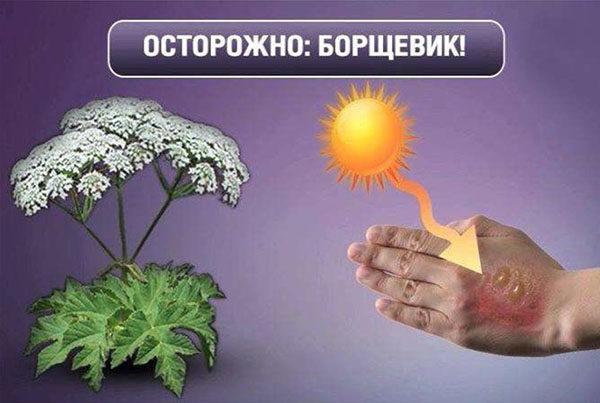 Ожоги от борщевика (фото) — чем лечить в домашних условиях, что делать и чем мазать ожог если ядовитым растением обжегся ребенок