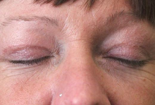 Рубцы после блефаропластики верхних и нижних век, шлифовка келоидного шрама и лечение мазями, как убрать и замаскировать шрам