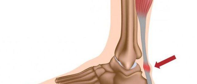 Тендинит ахиллова сухожилия — лечение и симптомы, как лечить обызвествление ахилла и хроническое воспаление в домашних условиях