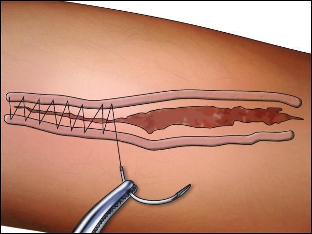 ПХО раны (первичная хирургическая обработка): алгоритм проведения и принципы процедуры