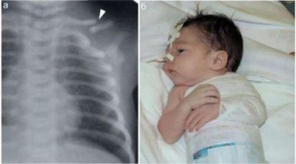 Перелом ключицы при родах у новорожденного: симптомы, лечение и реабилитация