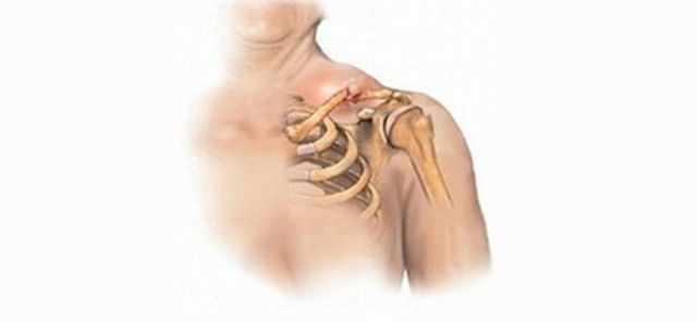Перелом плечевого сустава со смещением и без: лечение и реабилитация